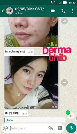 Dermathib-Konsumen-8_1